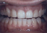 Dr Andor teeth before
